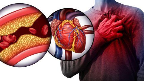 ¿Cuáles son los niveles máximos de colesterol? Consulta los datos por edades
