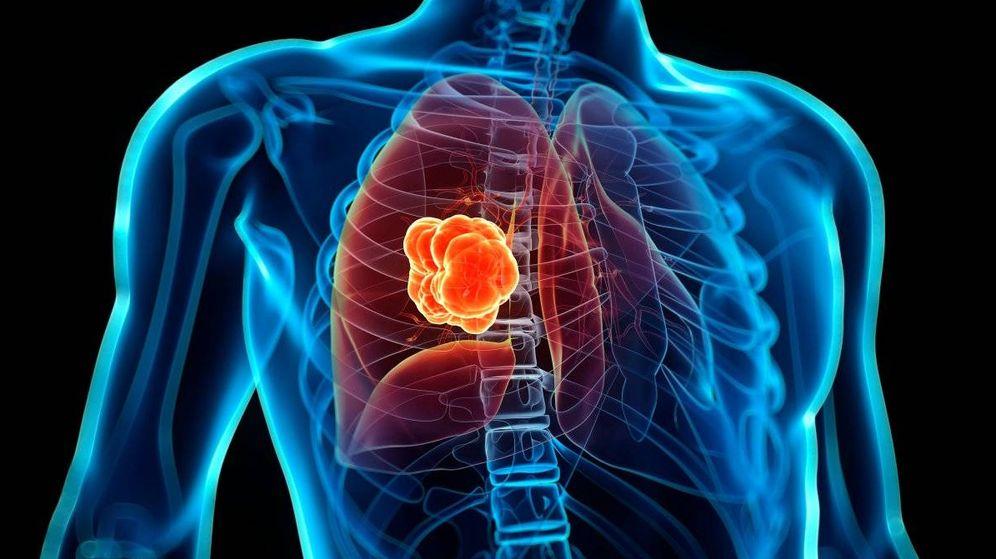 Resultado de imagen de cancer de pulmon