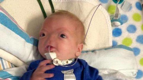 Eli Thompson, el bebé que nació sin nariz ni sistema olfativo