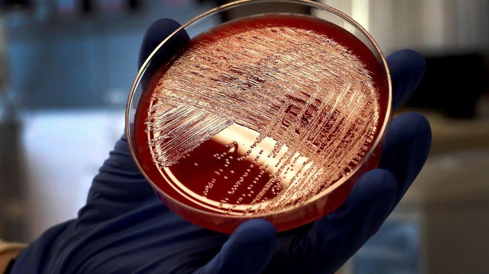 Foto: Imagen de archivo de un cultivo de listeriosis en una placa de Petri, en el Laboratorio de Listeriosis del Centro Nacional de Microbiología de Madrid