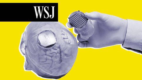 Implantes cerebrales: una nueva esperanza para las personas con movilidad reducida