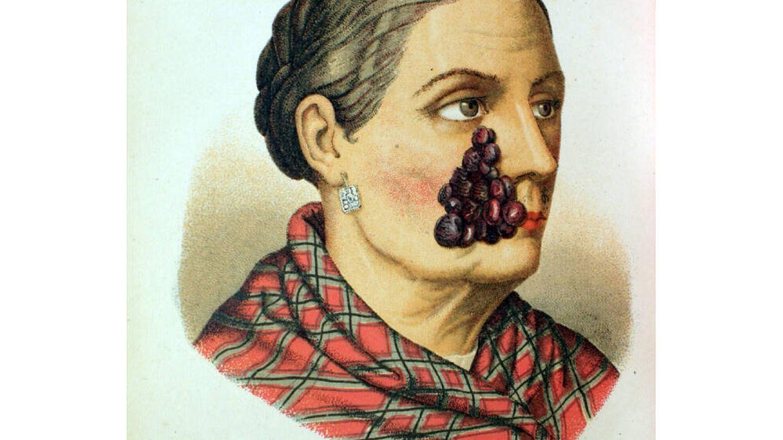 Venéreas y bubones del siglo XIX: bienvenidos al Museo Olavide