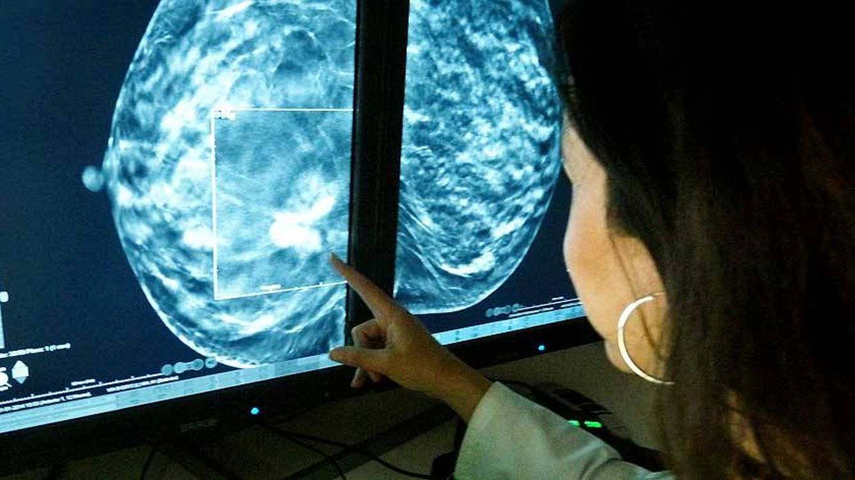 La tomosíntesis permite detectar un 40% más de tumores que la mamografía