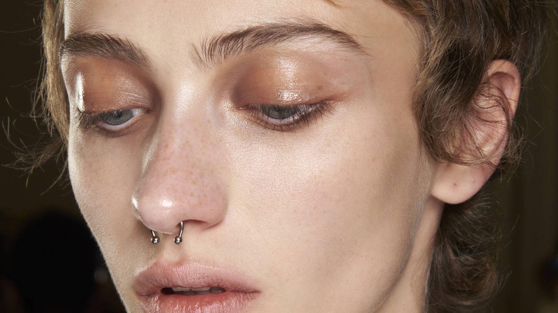 Los tratamientos de madecassoside se recomiendan para las pieles con acné. (Imaxtree)