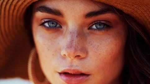 Manchas en la piel: qué son, por qué salen y cómo tratarlas
