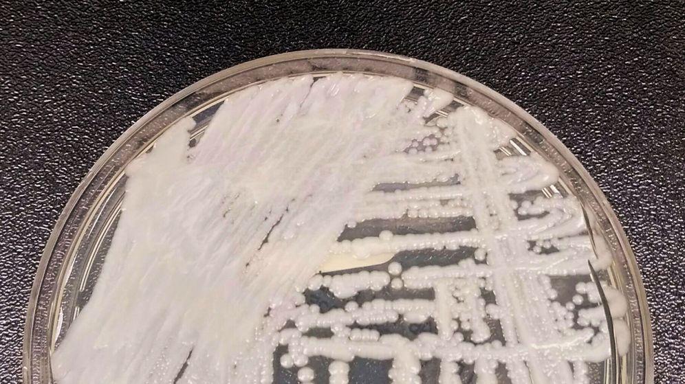 Foto: Una cepa de Candida auris cultivada en una placa en los Centros para el Control y la Prevención de Enfermedades