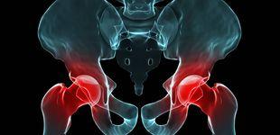 Post de A mi madre le molesta la prótesis de la cadera, ¿a qué puede deberse?
