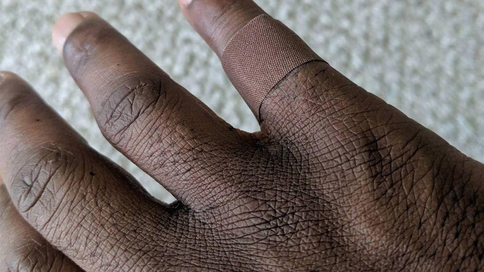 Foto: La tirita apenas se aprecia alrededor del dedo de Dominique. (Twitter)
