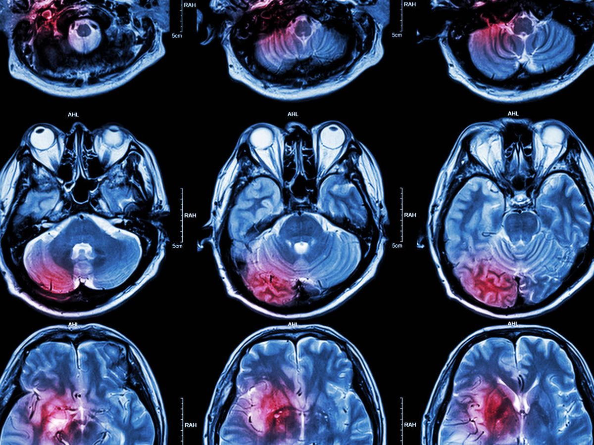 Foto: El cáncer cerebral es uno de los más peligrosos