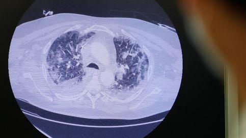 Las primeras autopsias del covid-19 revelan un 'thriller' microbiológico en los pulmones
