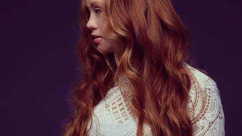 La modelo con síndrome de Down, Madeline Stuart, desfila en Nueva York con sus propios diseños