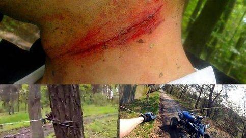 Las trampas para ciclistas: del cable a la altura del cuello al clavo para la bicicleta