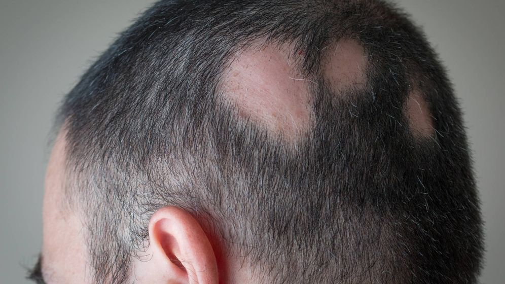 Foto: Alopecia aerata. (iStock)