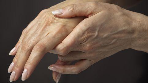 Descubren que la combinación de dos medicamentos puede revertir la artrosis