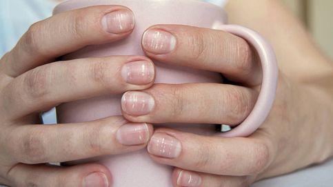 Las uñas dicen mucho de los problemas que tiene tu salud
