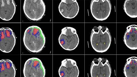 Una inteligencia artificial para detectar la gravedad de las lesiones cerebrales