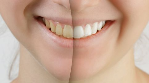Blanquearse los dientes y otros virales que sería mejor que no practicaras