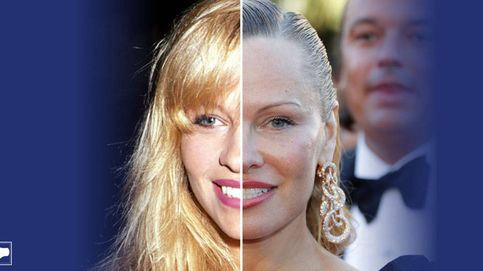 Nuestro cirujómetro tiene nueva 'víctima': Pamela Anderson