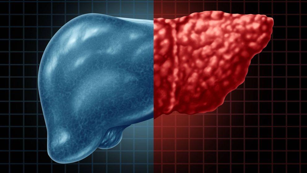 Las enfermedades que impiden que tu hígado se regenere