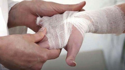 Un estudio demuestra que la temperatura de tus manos puede desvelar si padeces artritis