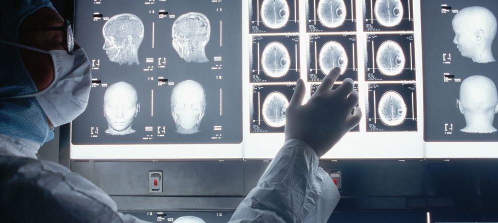Foto: Cada vez conocemos mejor nuestro cerebro. (Roger Ressmeyer/CORBIS)