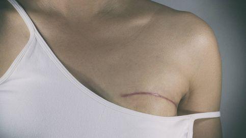 Un juez obliga a una mujer con dos cánceres de mama a trabajar de vigilante de seguridad
