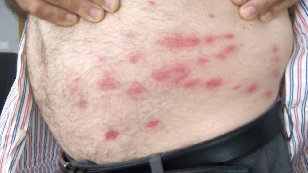 Así afecta la plaga de mosca negra: graves problemas y agricultores en urgencias