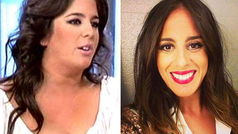 Anabel Pantoja antes y después de su intervención.