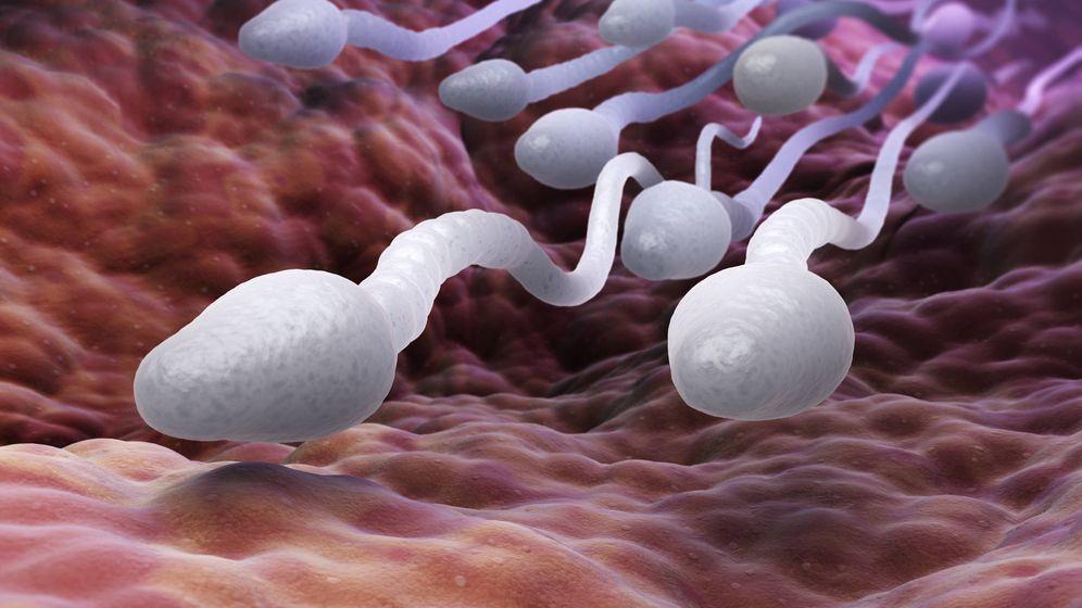 Foto: Espermatozoides a la carrera. (iStock)