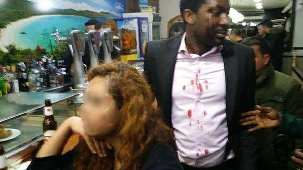 Foto: El actor Marius Makon, poco después de ser agredido en un bar de Móstoles. (@eltonprince)