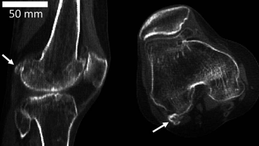 El raro hueso que se creía desaparecido y que puede provocar tus dolores de rodilla