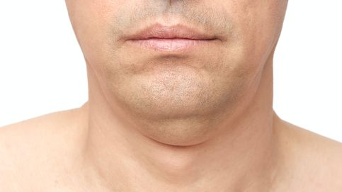 ¿Quieres adelgazar y perder grasa de la cara? Así debes hacerlo