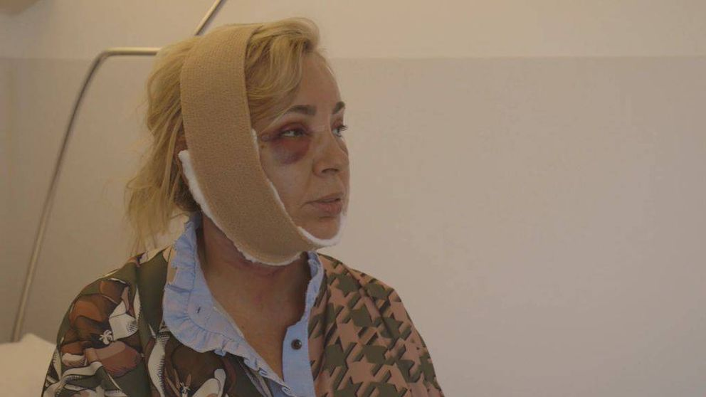 El impactante posoperatorio de Carmen Borrego tras sus retoques estéticos