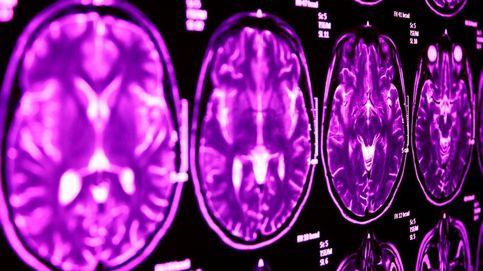 Encontrado el vínculo cerebral entre el autismo y el Síndrome de Tourette