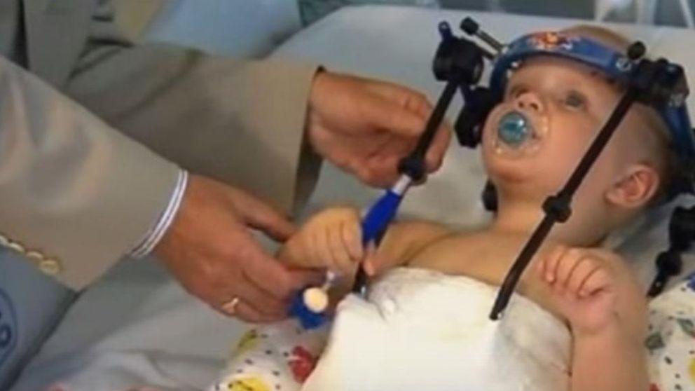 Sobrevive un bebé decapitado al que le han unido la cabeza y el cuerpo