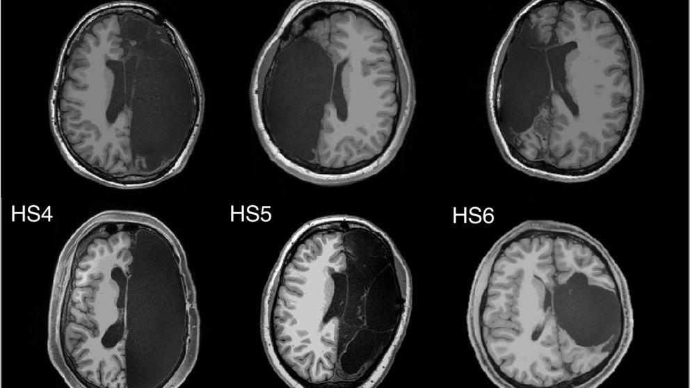 El cerebro es capaz de reorganizarse a pesar de faltarle un hemisferio