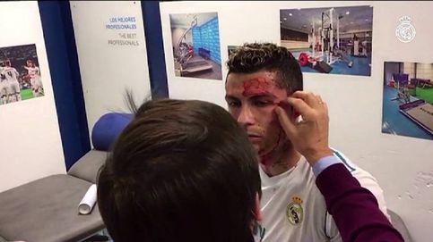 Así fue la cura a Cristiano Ronaldo