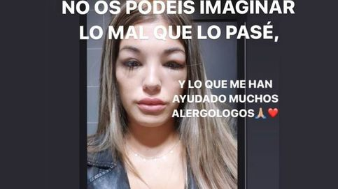La impactante imagen de Nuria tras dejar forzosamente 'GH': No podía respirar