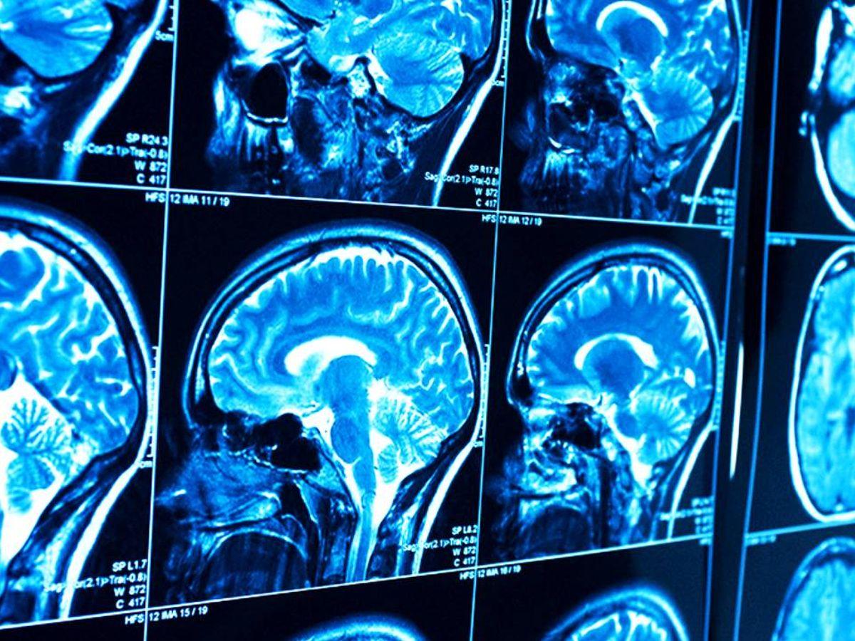 Foto: Estudio del cerebro