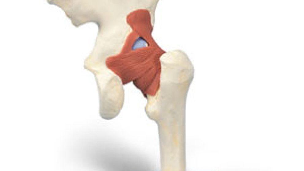 Las deficiencias de articulaciones y huesos son las discapacidades más comunes