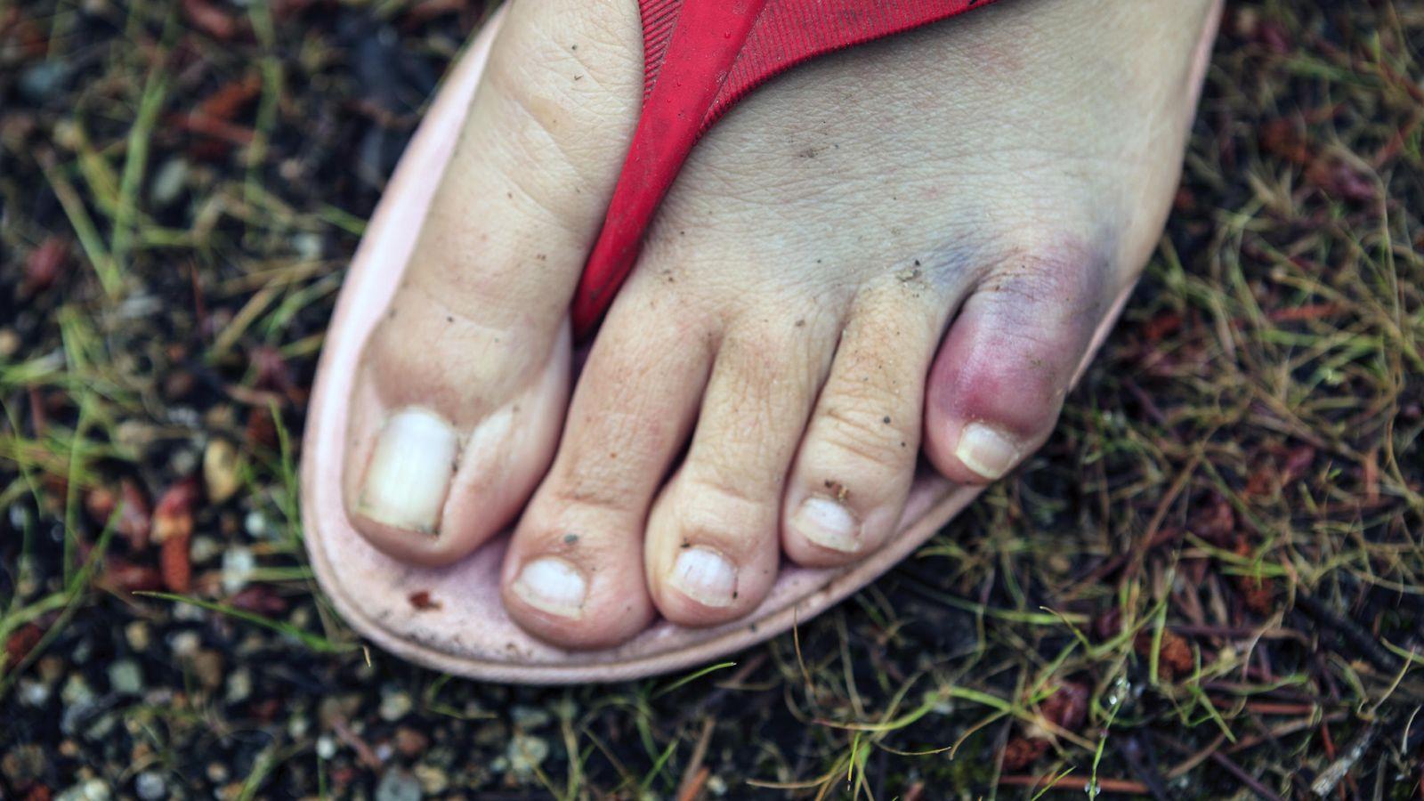a85e1f31 Salud: ¿Comodidad? Por qué las chanclas y las sandalias te pueden ...
