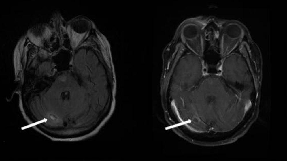 Foto: Las amebas, señaladas en la parte inferior del escáner. (Foto: Swedish Medical Center)