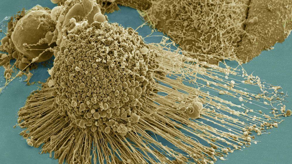 Foto: Micrografía electrónica de barrido de una célula HeLa apoptótica. (NIH)