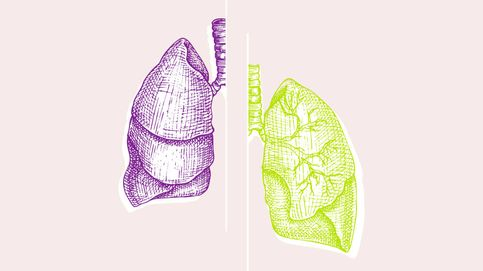 Cáncer de pulmón: de un diagnóstico tardío a una larga supervivencia