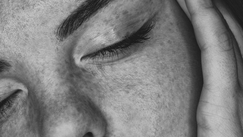 El peeling unifica el tono, devuelve la luminosidad a la piel y reduce las cicatrices del acné. (Unsplash)