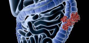 Post de Qué le ha pasado a Antonio Resines: cómo saber si tienes cáncer de colon