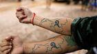 Los tatuajes son de por vida... o no