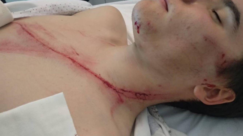El terror de la bicicleta: un quitamiedos casi degüella a un ciclista en el País Vasco