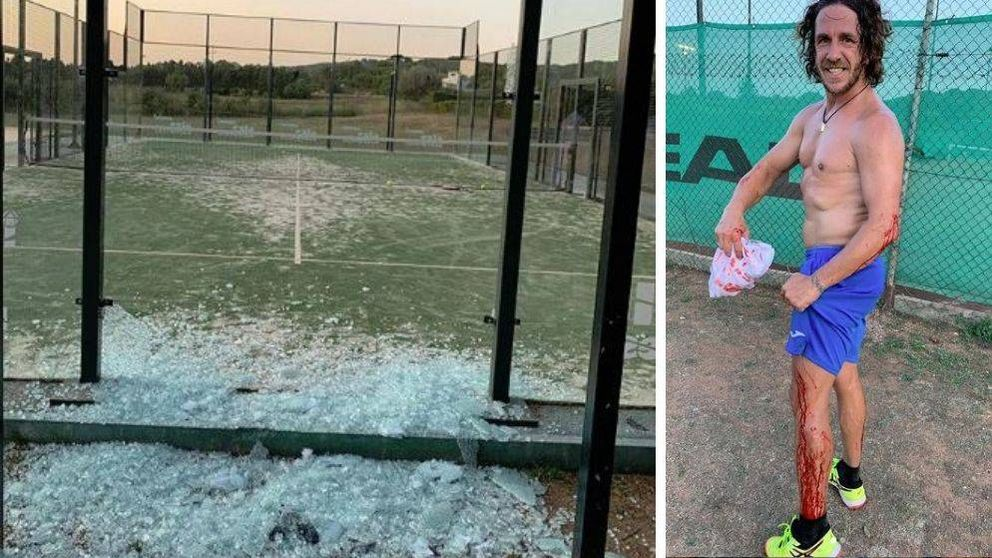 El accidente de Carles Puyol tras reventar el cristal de una pista de pádel