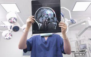 Los científicos hallan una nueva parte del cerebro humano
